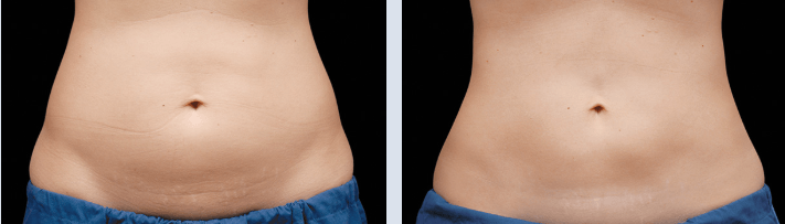 Before/after belly coolsculpting. Coolsculpting result. iSkinPure clinic. North Vancouver