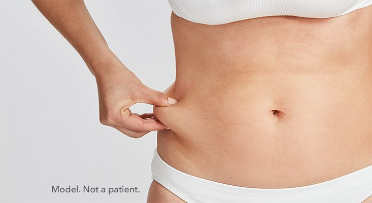 Woman pinching her belly fat. CoolSculpting