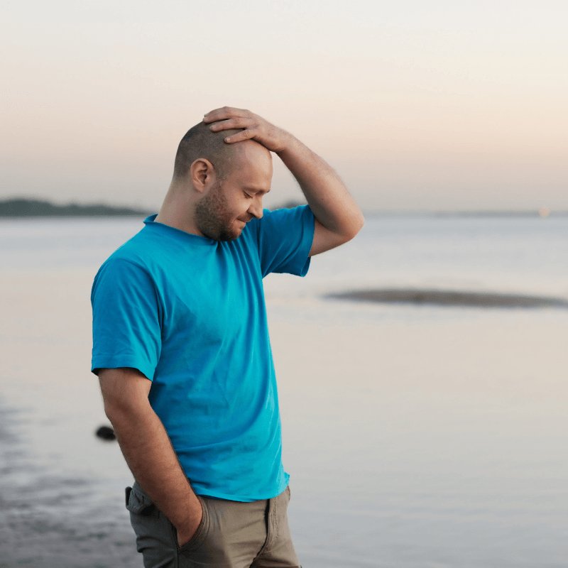 Balding man in blue t-shirt sadly holds his head. Coolsculpting target areas