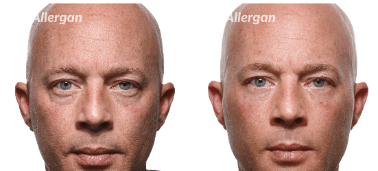 Man face before and after botox. iSkinPure clinic. North Vancouver