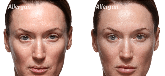 Woman face before and after botox. iSkinPure clinic. North Vancouver