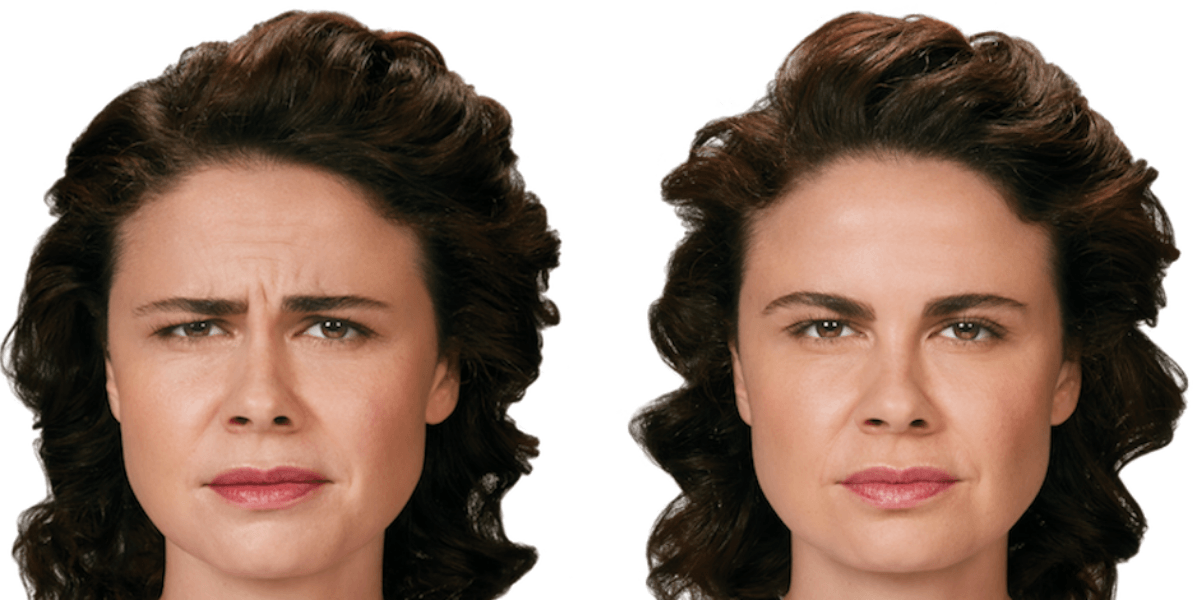 Woman face before and after neuromodulator injection. iSkinPure clinic. North Vancouver