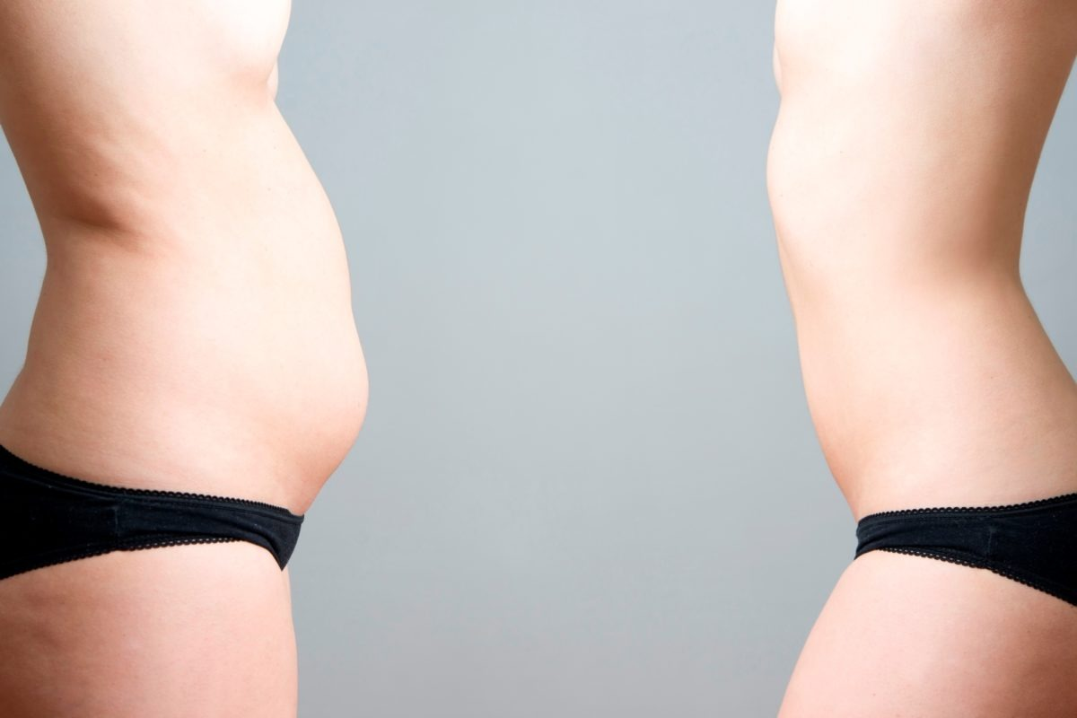 Woman belly before and after coolsculpting. iSkinPure clinic. North Vancouver