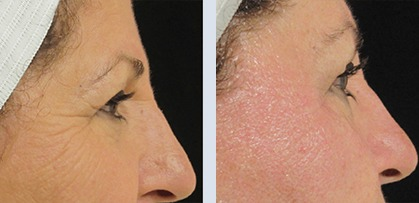 Woman face before and after anti-aging procedures