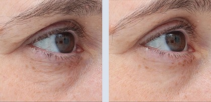 Woman face before and after anti-aging procedures. Skin tightening under eye